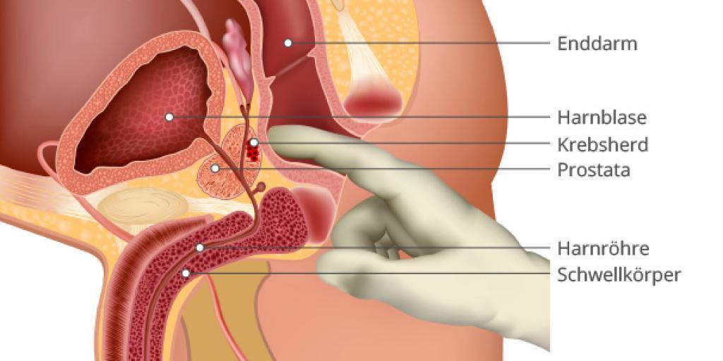 kann man die prostata selbst abtasten