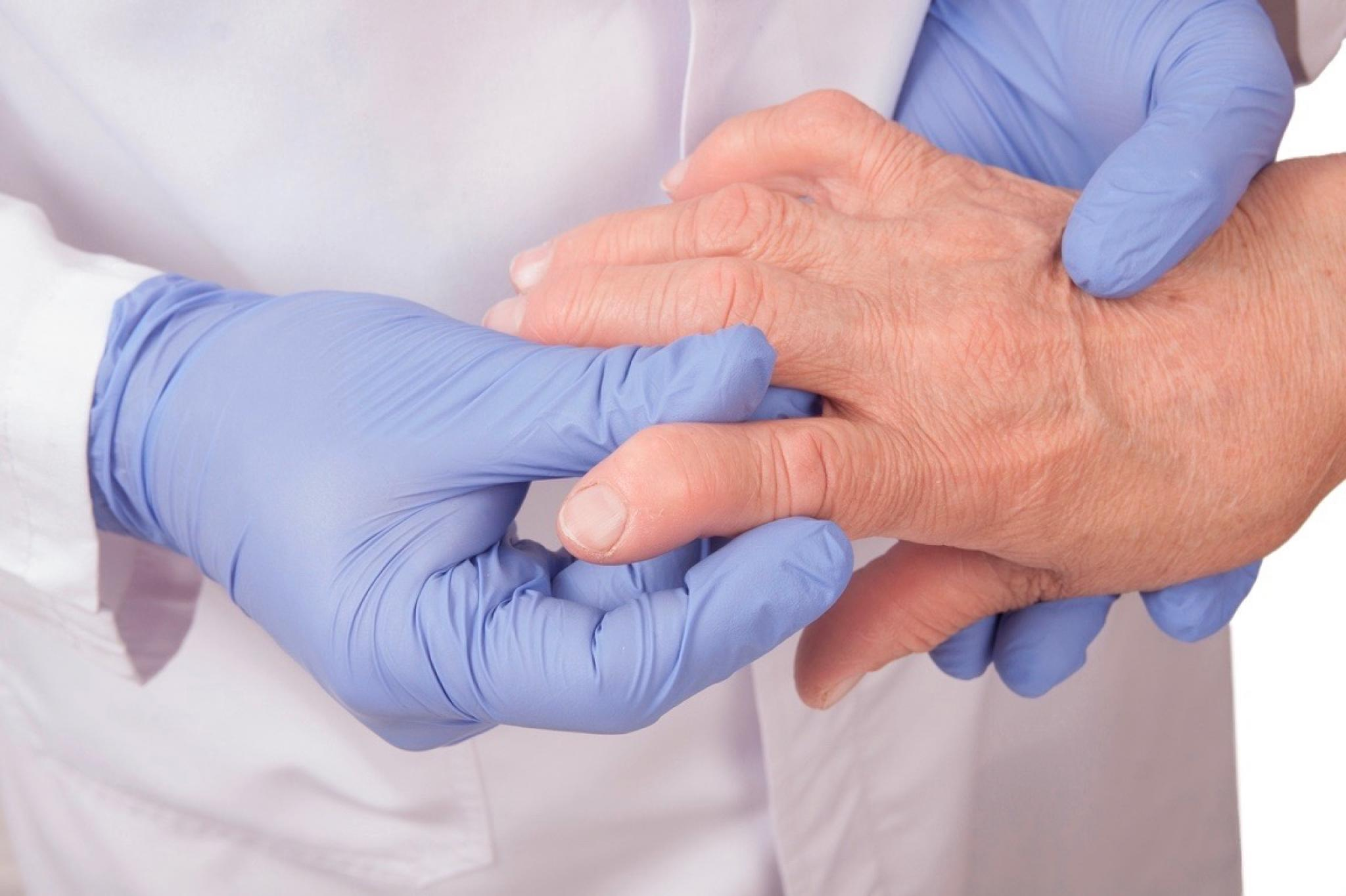 Gewichtsverlust und rheumatoide Arthritis zusammen